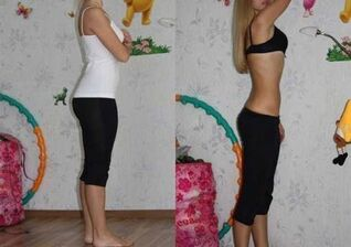6 petals diet before and after photos